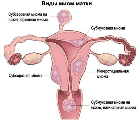 Белый шум для лечения миомы матки